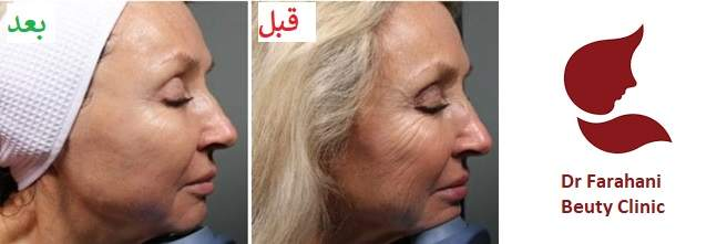 هایفوتراپی یا جراحی لیفت صورت (8)